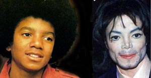 michael jackson before and after surgery